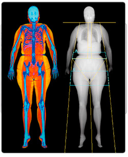 Body composition evaluation